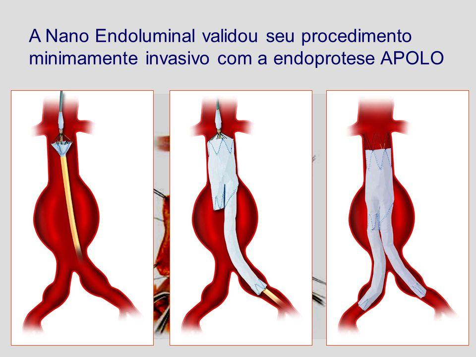 A Nano Endoluminal validou seu procedimento minimamente invasivo com a endoprotese APOLO