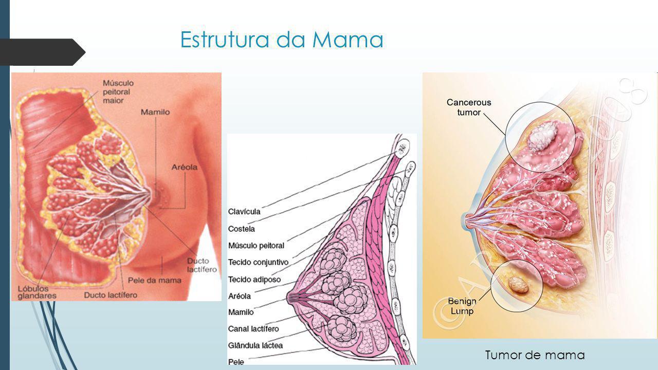 Estrutura da Mama Tumor de mama