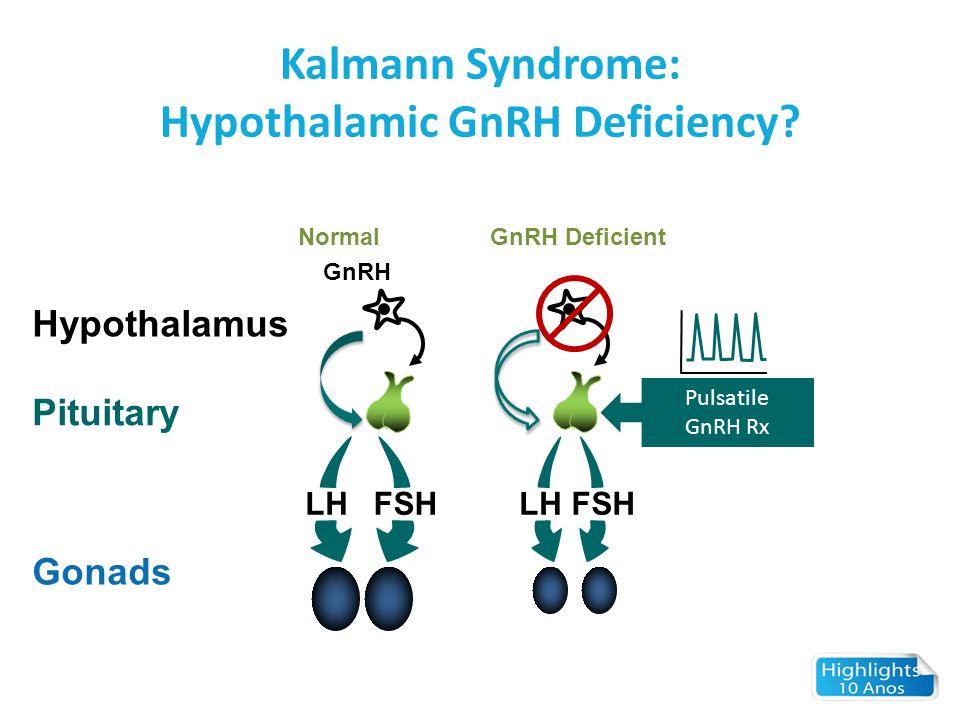 Kalmann Syndrome: Hypothalamic GnRH Deficiency? NormalGnRH Deficient GnRH Hypothalamus Pituitary Gonads LHFSH LHFSH Pulsatile GnRH Rx