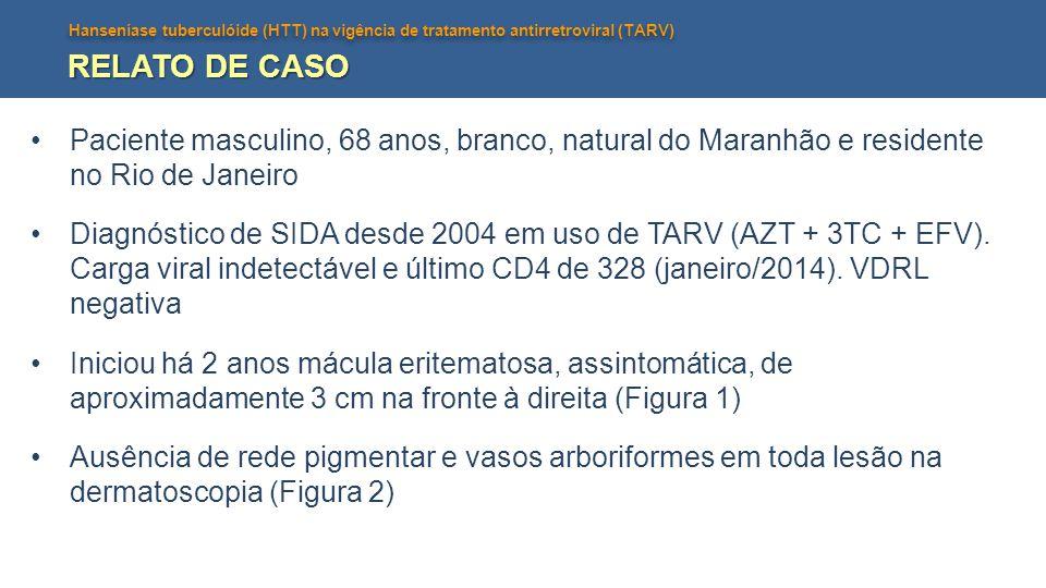 Hanseníase tuberculóide (HTT) na vigência de tratamento antirretroviral (TARV) RELATO DE CASO Paciente masculino, 68 anos, branco, natural do Maranhão