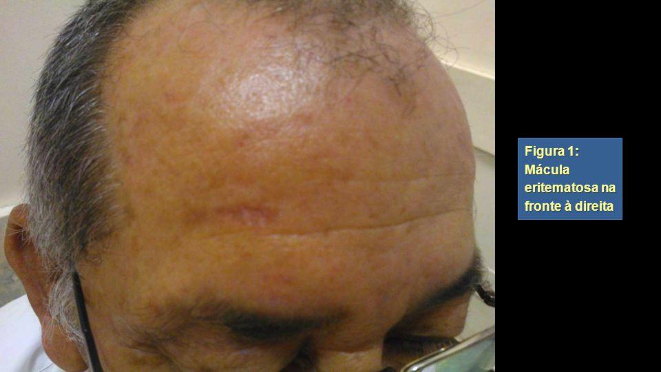 Figura 1: Mácula eritematosa na fronte à direita Figura 1: Mácula eritematosa na fronte à direita