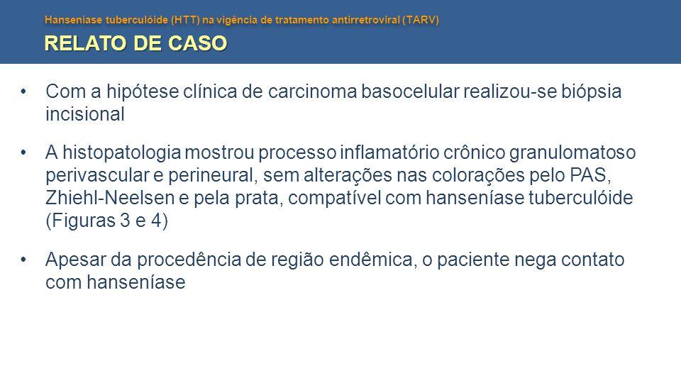 Hanseníase tuberculóide (HTT) na vigência de tratamento antirretroviral (TARV) RELATO DE CASO Com a hipótese clínica de carcinoma basocelular realizou
