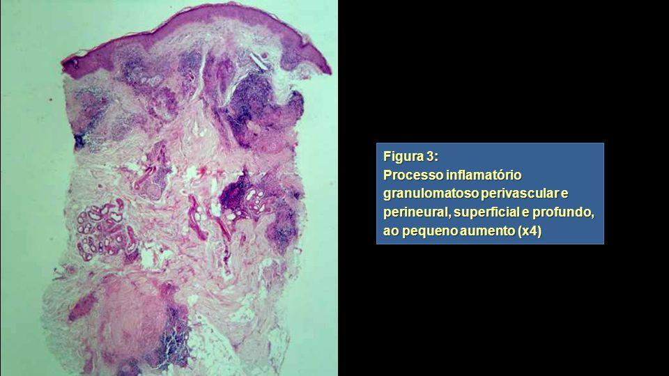 Figura 3: Processo inflamatório granulomatoso perivascular e perineural, superficial e profundo, ao pequeno aumento (x4) Figura 3: Processo inflamatór