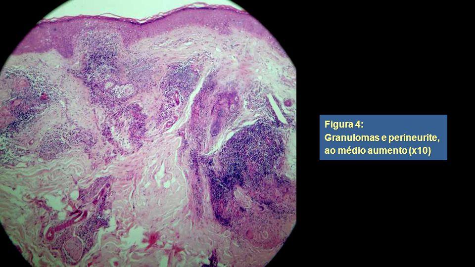 Figura 4: Granulomas e perineurite, ao médio aumento (x10) Figura 4: Granulomas e perineurite, ao médio aumento (x10)