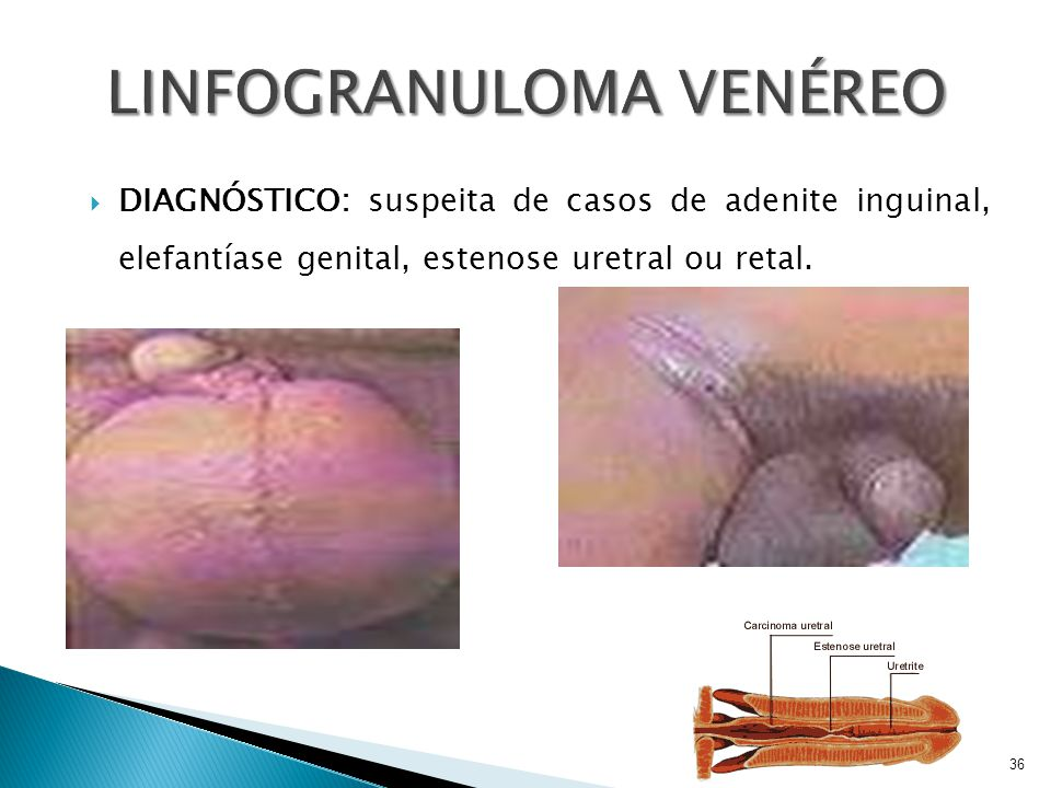  DIAGNÓSTICO: suspeita de casos de adenite inguinal, elefantíase genital, estenose uretral ou retal. 36