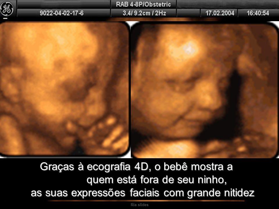 Ria slides Graças à ecografia 4D, o bebê mostra a quem está fora de seu ninho, as suas expressões faciais com grande nitidez Graças à ecografia 4D, o