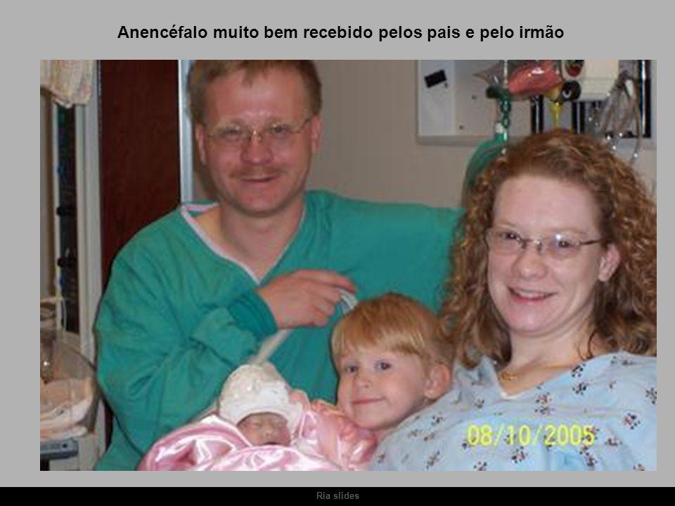 Ria slides Anencéfalo muito bem recebido pelos pais e pelo irmão