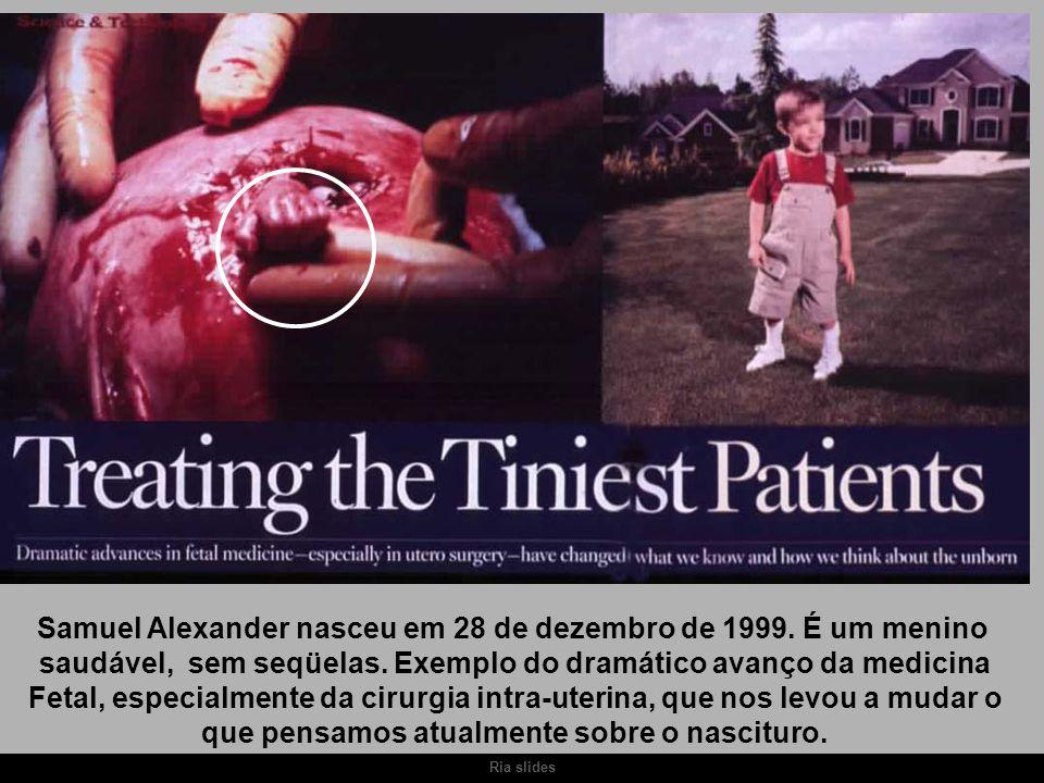 Ria slides Samuel Alexander nasceu em 28 de dezembro de 1999. É um menino saudável, sem seqüelas. Exemplo do dramático avanço da medicina Fetal, espec