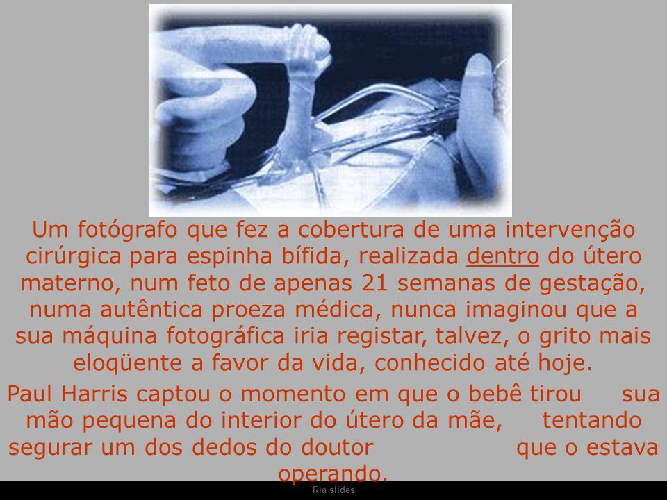 Ria slides Um fotógrafo que fez a cobertura de uma intervenção cirúrgica para espinha bífida, realizada dentro do útero materno, num feto de apenas 21