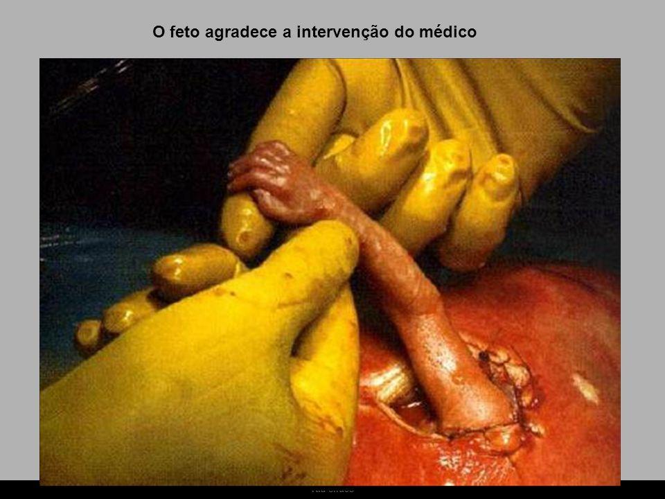 Ria slides O feto agradece a intervenção do médico
