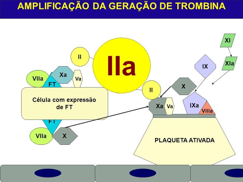 VIIa PLAQUETA ATIVADA X VIIa AMPLIFICAÇÃO DA GERAÇÃO DE TROMBINA FT Célula com expressão de FT Xa Va II IIa Xa IXa VIIIa X Va XI XIa IX II X IIa