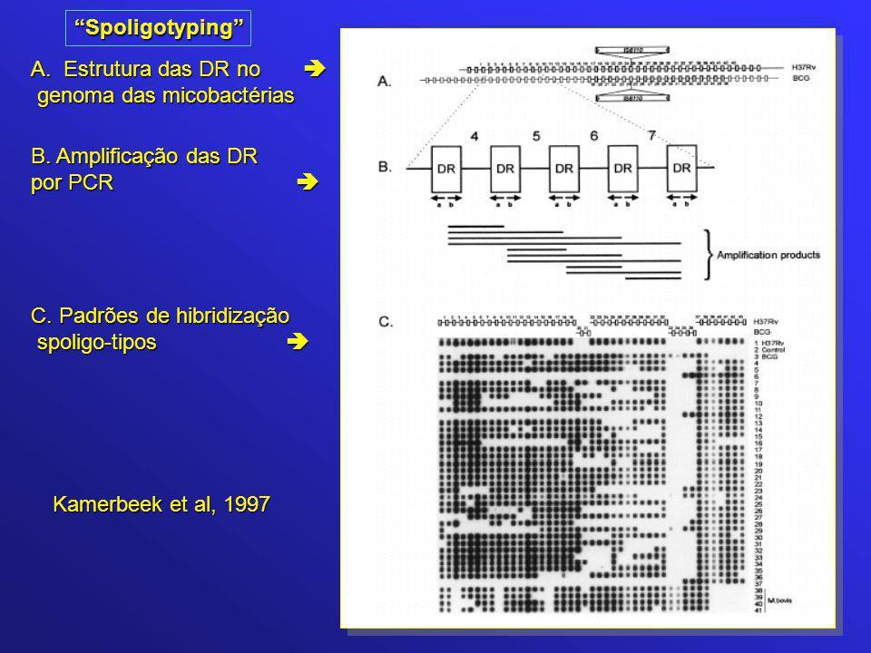 Kamerbeek et al, 1997 A.Estrutura das DR no  genoma das micobactérias genoma das micobactérias B. Amplificação das DR por PCR  C. Padrões de hibridi