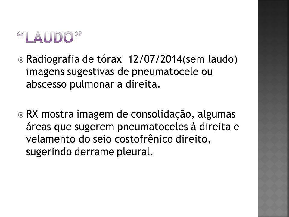  Radiografia de tórax 12/07/2014(sem laudo) imagens sugestivas de pneumatocele ou abscesso pulmonar a direita.  RX mostra imagem de consolidação, al
