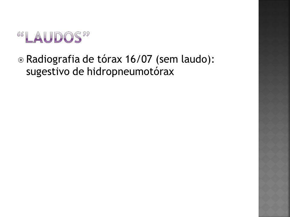  Radiografia de tórax 16/07 (sem laudo): sugestivo de hidropneumotórax