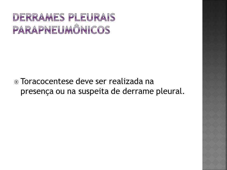  Toracocentese deve ser realizada na presença ou na suspeita de derrame pleural.