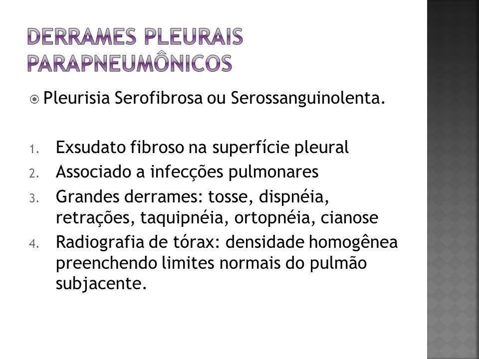  Pleurisia Serofibrosa ou Serossanguinolenta. 1. Exsudato fibroso na superfície pleural 2. Associado a infecções pulmonares 3. Grandes derrames: toss