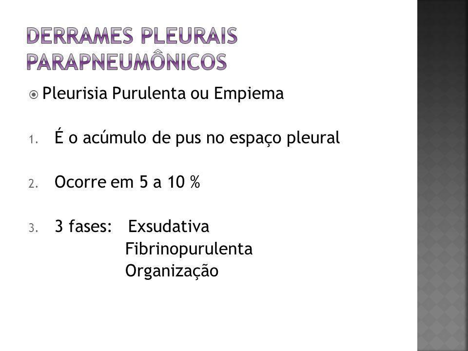  Pleurisia Purulenta ou Empiema 1. É o acúmulo de pus no espaço pleural 2. Ocorre em 5 a 10 % 3. 3 fases: Exsudativa Fibrinopurulenta Organização