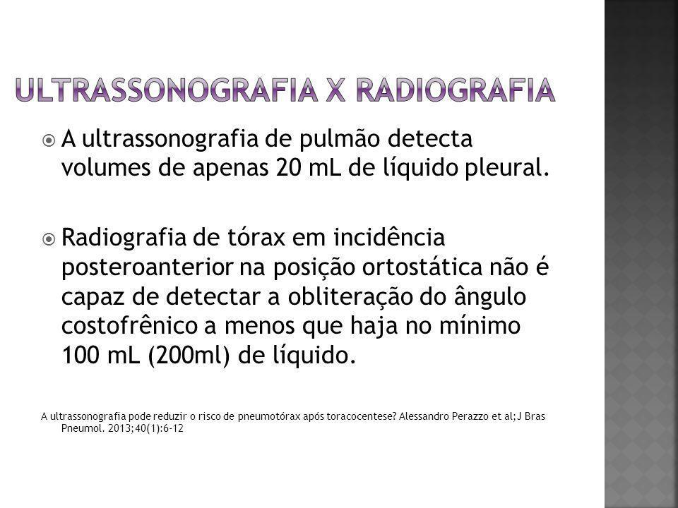  A ultrassonografia de pulmão detecta volumes de apenas 20 mL de líquido pleural.  Radiografia de tórax em incidência posteroanterior na posição ort