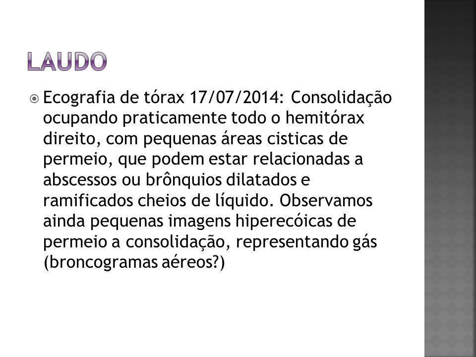  Ecografia de tórax 17/07/2014: Consolidação ocupando praticamente todo o hemitórax direito, com pequenas áreas cisticas de permeio, que podem estar