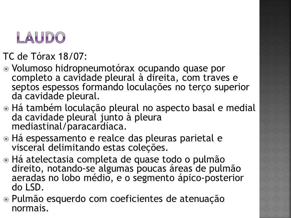 TC de Tórax 18/07:  Volumoso hidropneumotórax ocupando quase por completo a cavidade pleural à direita, com traves e septos espessos formando loculaç