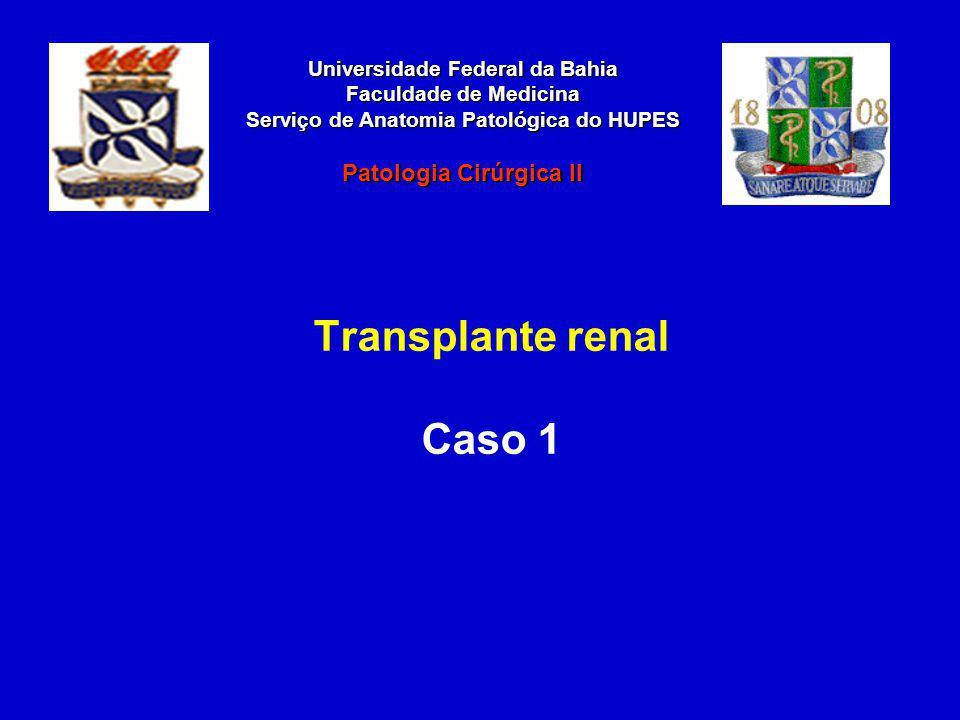 Caso Clínico Trata-se de paciente do sexo feminino, 31 anos de idade, que foi submetida a transplante renal 13 dias atrás e atualmente está apresentando insuficiência renal, disúria e febre.