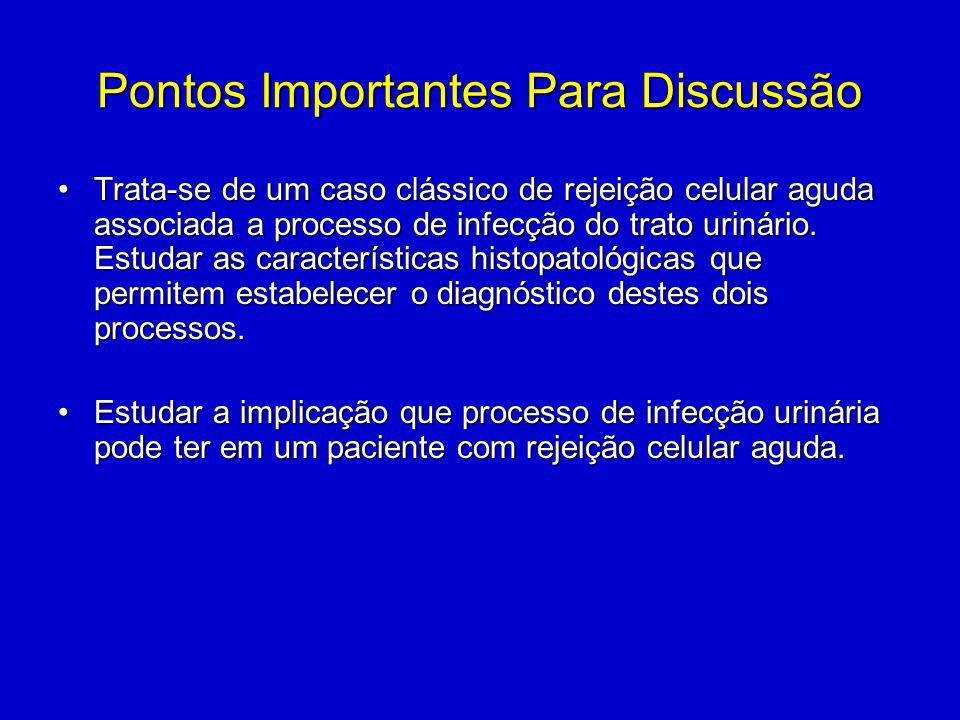 Pontos Importantes Para Discussão Trata-se de um caso clássico de rejeição celular aguda associada a processo de infecção do trato urinário. Estudar a
