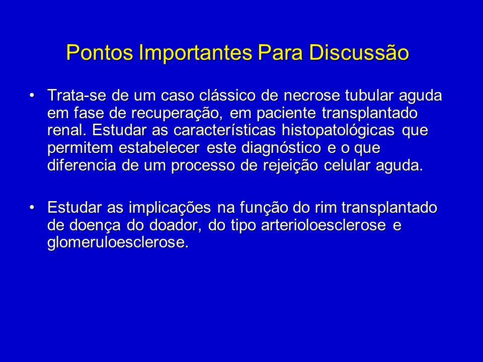 Pontos Importantes Para Discussão Trata-se de um caso clássico de necrose tubular aguda em fase de recuperação, em paciente transplantado renal. Estud