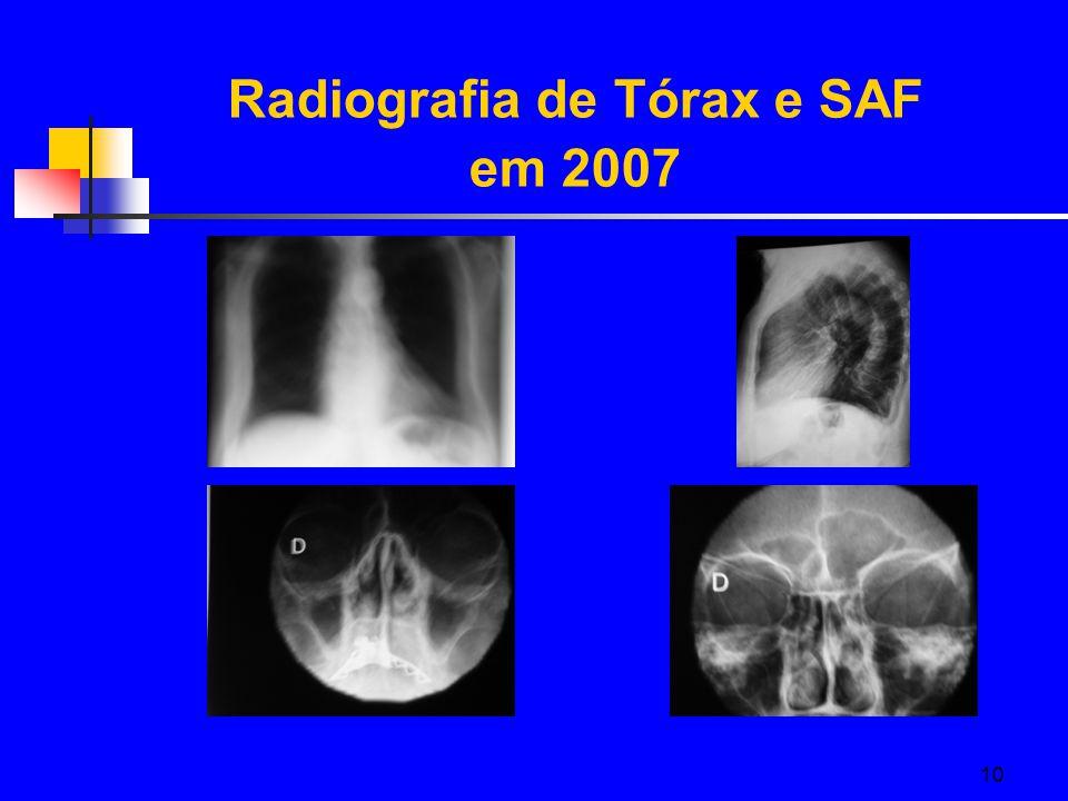 10 Radiografia de Tórax e SAF em 2007