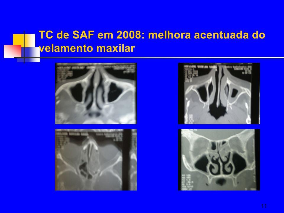 11 TC de SAF em 2008: melhora acentuada do velamento maxilar