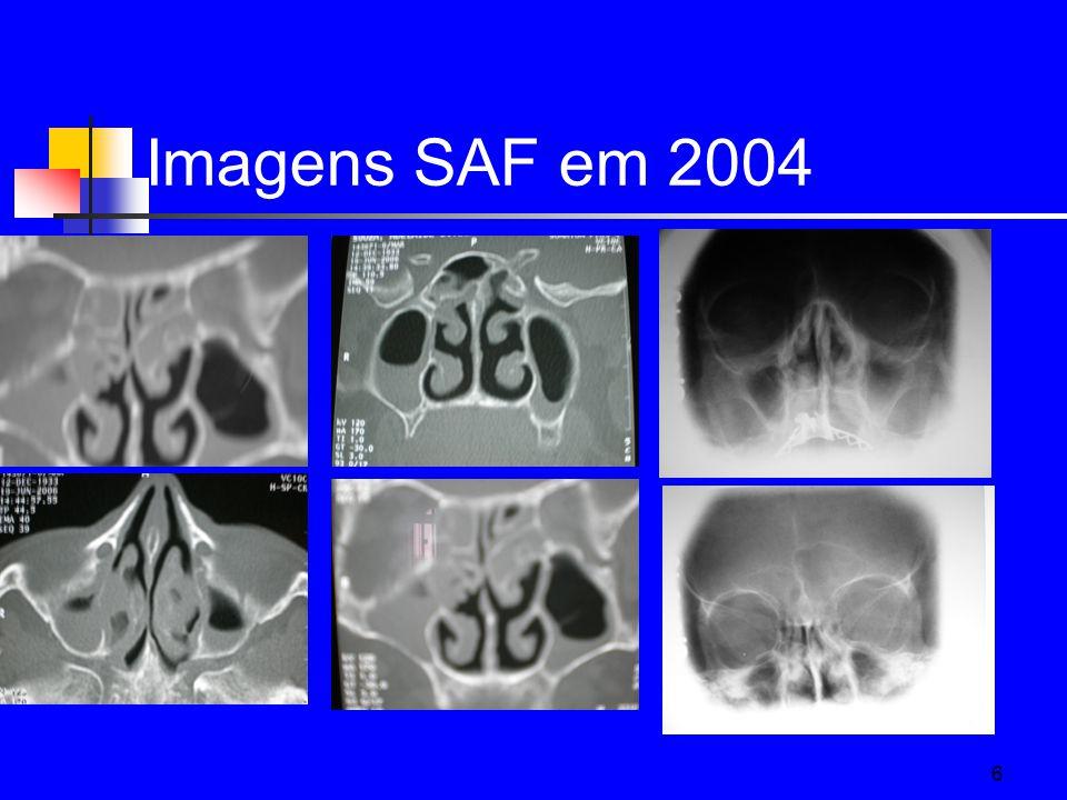 6 Imagens SAF em 2004