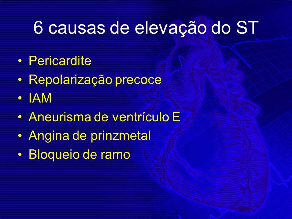 6 causas de elevação do ST Pericardite Repolarização precoce IAM Aneurisma de ventrículo E Angina de prinzmetal Bloqueio de ramo