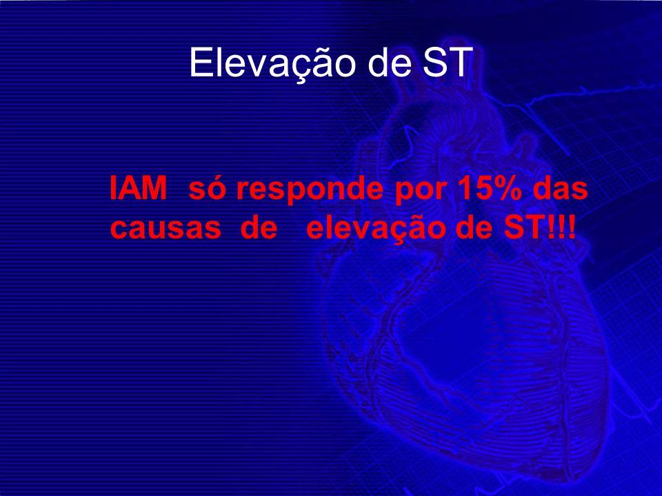 Elevação de ST IAM só responde por 15% das causas de elevação de ST!!!
