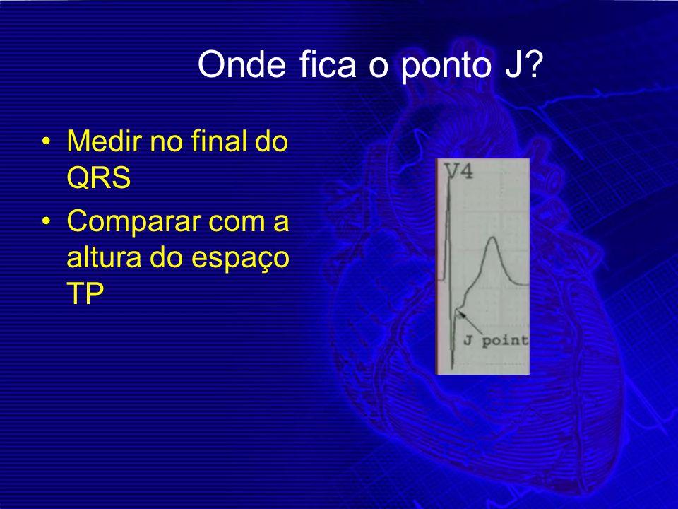 Onde fica o ponto J? Medir no final do QRS Comparar com a altura do espaço TP