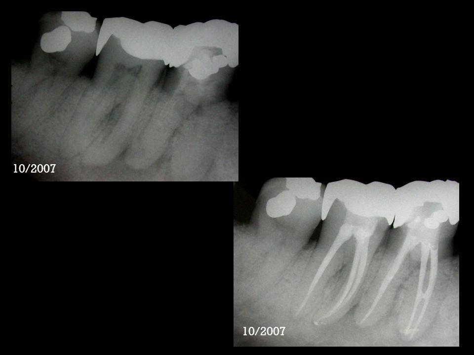 Paciente BGT, 44 anos Histórico: Compareceu ao consultório com dor espontânea aos testes térmicos no dente 36 Periápice: Ausência de rarefação óssea periapical Diagnóstico: Pulpite irreversível Plano de tratamento: Tratamento endodôntico do dentes 36 Protocolo terapêutico: Instrumentação rotatória- Endowave.06 Sequência #40,35,30,25,30 taper.06 e associação de hipoclorito de sódio 1,0% e Endo PTC gel Obturação: Cimeto AH-Plus Selamento provisório: Cimento de Ionômero de vidro