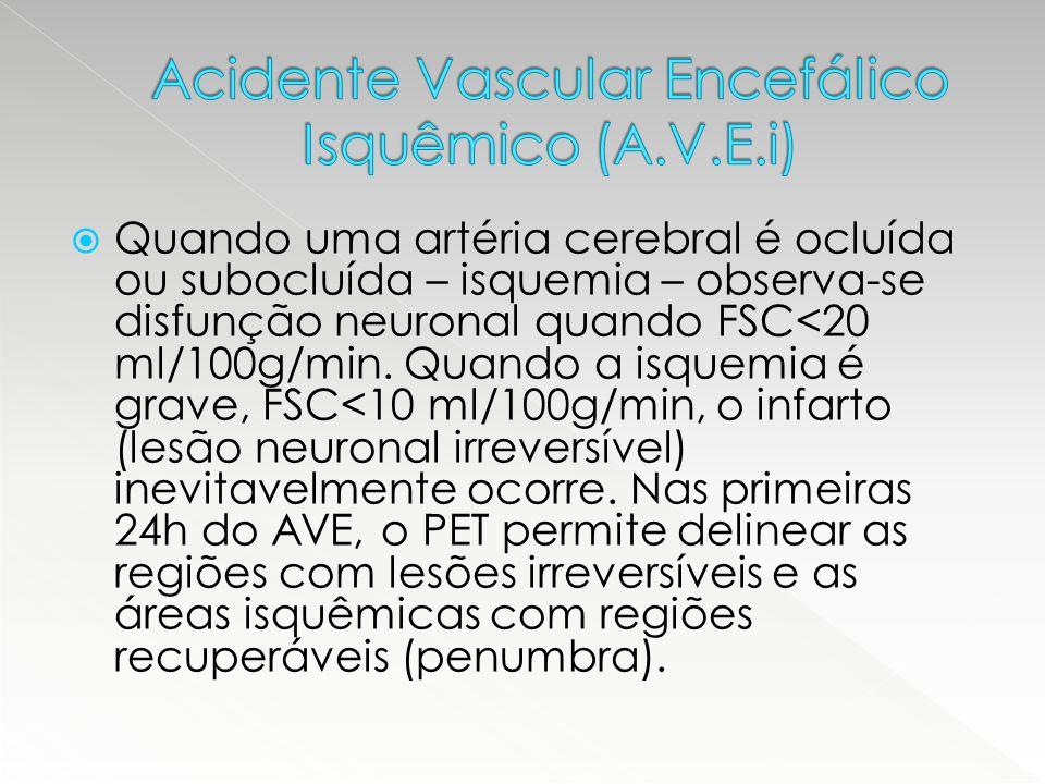  Quando uma artéria cerebral é ocluída ou subocluída – isquemia – observa-se disfunção neuronal quando FSC<20 ml/100g/min. Quando a isquemia é grave,