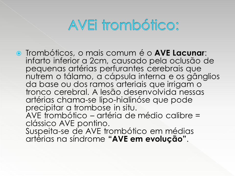  Trombóticos, o mais comum é o AVE Lacunar : infarto inferior a 2cm, causado pela oclusão de pequenas artérias perfurantes cerebrais que nutrem o tál