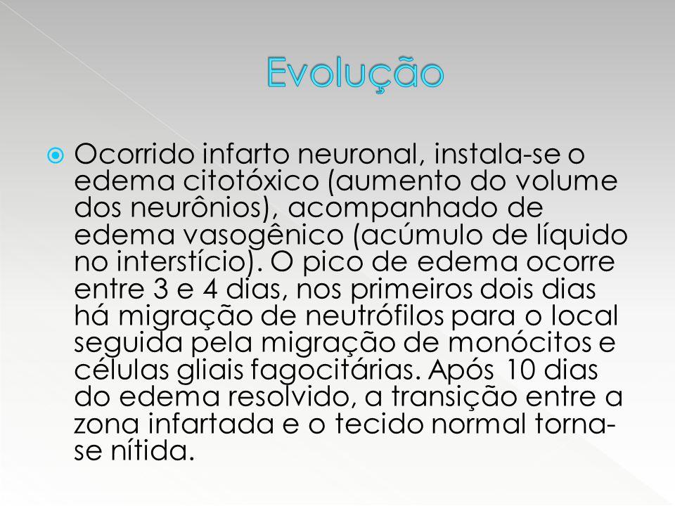  Ocorrido infarto neuronal, instala-se o edema citotóxico (aumento do volume dos neurônios), acompanhado de edema vasogênico (acúmulo de líquido no i