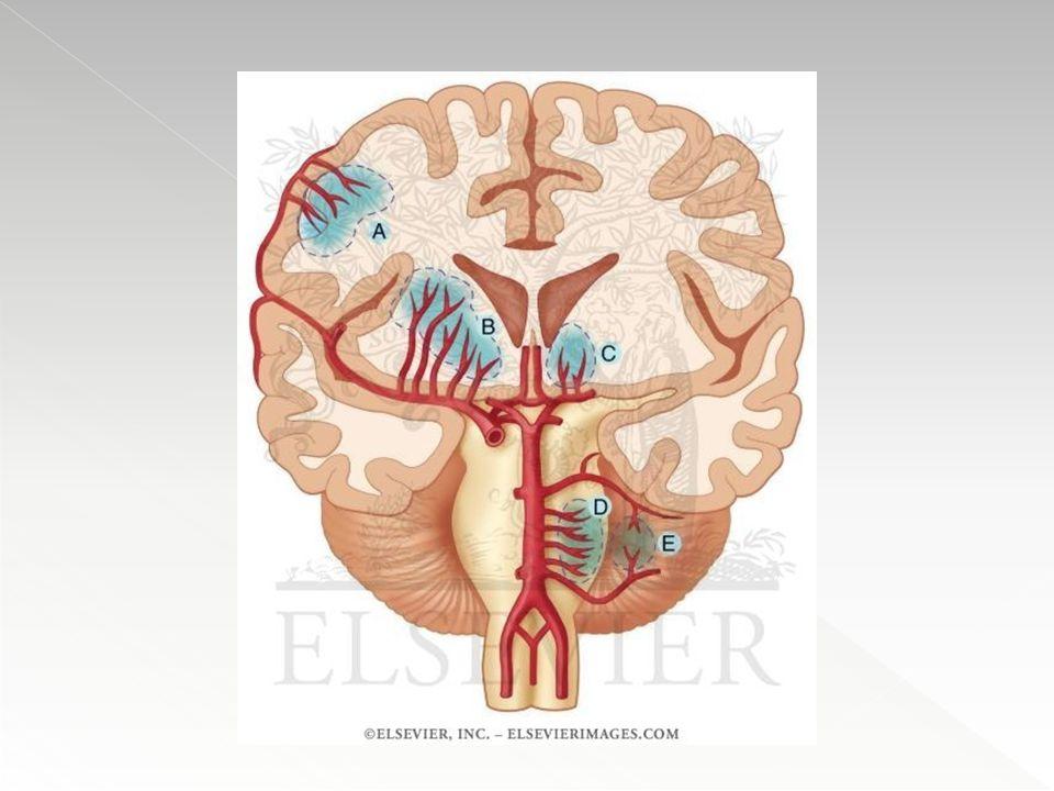  Hemorragias Agudas : caracterizam-se pelo extravasamento de sangue com compressão do parênquima adjacente.