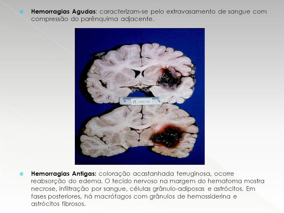  Hemorragias Agudas : caracterizam-se pelo extravasamento de sangue com compressão do parênquima adjacente.  Hemorragias Antigas: coloração acastanh