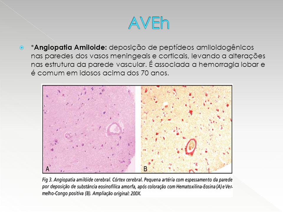  * Angiopatia Amiloide: deposição de peptídeos amiloidogênicos nas paredes dos vasos meningeais e corticais, levando a alterações nas estrutura da pa