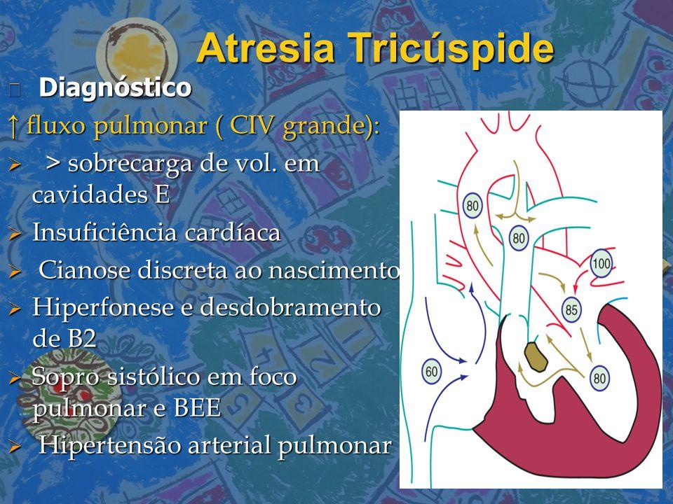 Atresia Tricúspide Diagnóstico Diagnóstico ↑ fluxo pulmonar ( CIV grande):  > sobrecarga de vol. em cavidades E  Insuficiência cardíaca  Cianose di