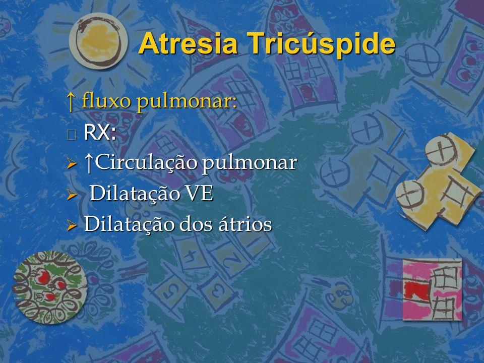 Atresia Tricúspide ↑ fluxo pulmonar: n RX:  ↑Circulação pulmonar  Dilatação VE  Dilatação dos átrios