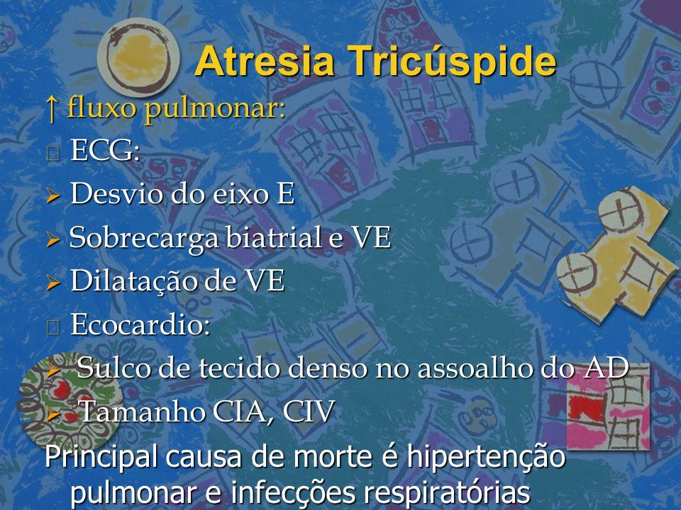 Atresia Tricúspide ↑ fluxo pulmonar: n ECG:  Desvio do eixo E  Sobrecarga biatrial e VE  Dilatação de VE n Ecocardio:  Sulco de tecido denso no as