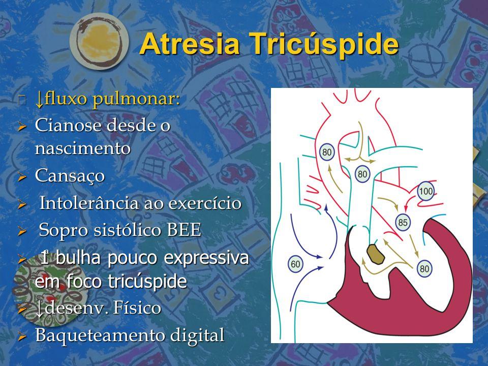 Atresia Tricúspide n ↓fluxo pulmonar:  Cianose desde o nascimento  Cansaço  Intolerância ao exercício  Sopro sistólico BEE  1 bulha pouco express