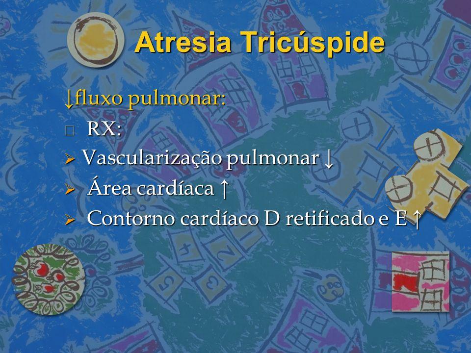 Atresia Tricúspide ↓fluxo pulmonar: n RX:  Vascularização pulmonar ↓  Área cardíaca ↑  Contorno cardíaco D retificado e E ↑