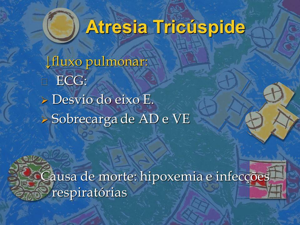 Atresia Tricúspide ↓fluxo pulmonar: ↓fluxo pulmonar: ECG: ECG:  Desvio do eixo E.  Sobrecarga de AD e VE Causa de morte: hipoxemia e infecções respi