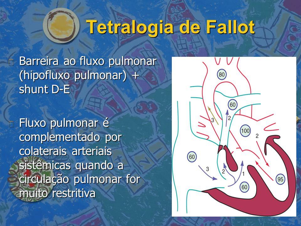 Tetralogia de Fallot n Barreira ao fluxo pulmonar (hipofluxo pulmonar) + shunt D-E n Fluxo pulmonar é complementado por colaterais arteriais sistêmica