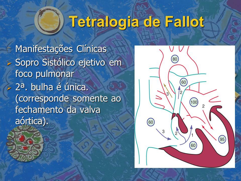 Tetralogia de Fallot n Manifestações Clínicas  Sopro Sistólico ejetivo em foco pulmonar  2ª. bulha é única. (corresponde somente ao fechamento da va