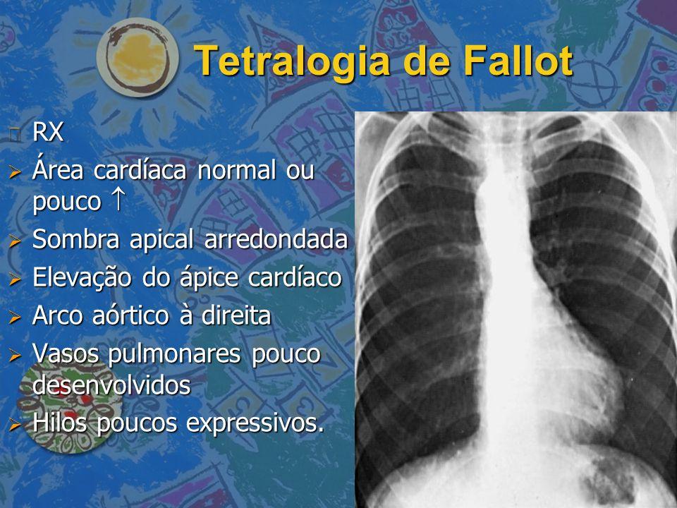 Tetralogia de Fallot n RX  Área cardíaca normal ou pouco   Sombra apical arredondada  Elevação do ápice cardíaco  Arco aórtico à direita  Vasos