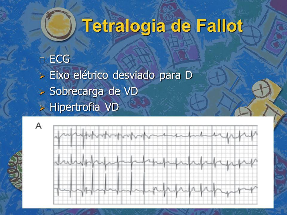 Tetralogia de Fallot n ECG  Eixo elétrico desviado para D  Sobrecarga de VD  Hipertrofia VD